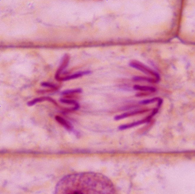 plant_anaphase-56a09b0d3df78cafdaa32db4